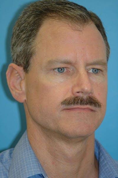 Male Eye Procedures Gallery - Patient 6097010 - Image 8