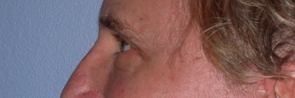 Male Eye Procedures Gallery - Patient 6097011 - Image 6