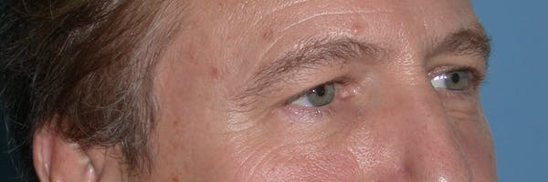 Male Eye Procedures Gallery - Patient 6097011 - Image 7