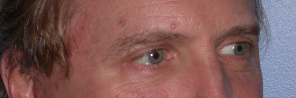 Male Eye Procedures Gallery - Patient 6097011 - Image 8