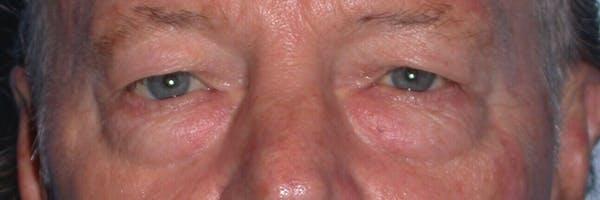 Male Eye Procedures Gallery - Patient 6097013 - Image 1