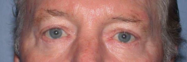 Male Eye Procedures Gallery - Patient 6097013 - Image 2