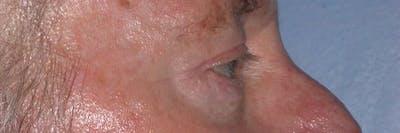 Male Eye Procedures Gallery - Patient 6097013 - Image 4