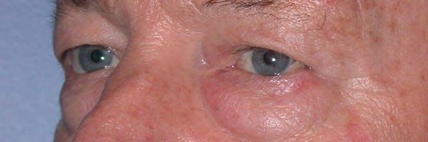 Male Eye Procedures Gallery - Patient 6097013 - Image 5