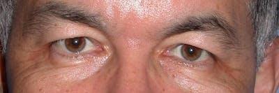 Male Eye Procedures Gallery - Patient 6097014 - Image 1