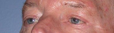 Male Eye Procedures Gallery - Patient 6097013 - Image 6