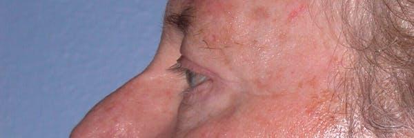 Male Eye Procedures Gallery - Patient 6097013 - Image 8