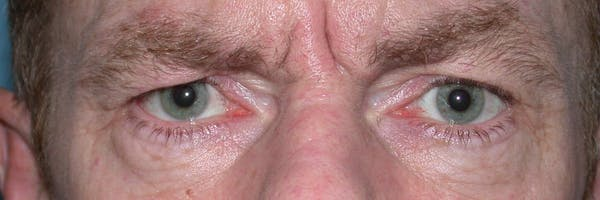 Male Eye Procedures Gallery - Patient 6097015 - Image 1
