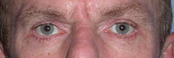 Male Eye Procedures Gallery - Patient 6097015 - Image 2