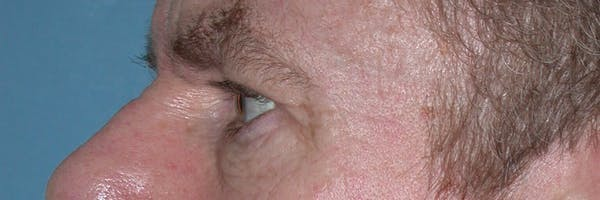 Male Eye Procedures Gallery - Patient 6097015 - Image 3