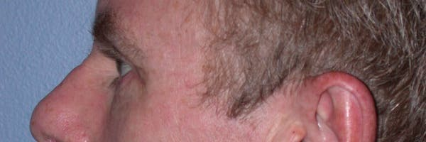 Male Eye Procedures Gallery - Patient 6097015 - Image 4
