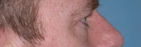 Male Eye Procedures Gallery - Patient 6097015 - Image 5