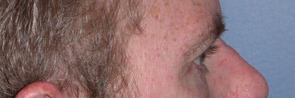 Male Eye Procedures Gallery - Patient 6097015 - Image 6