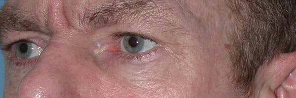 Male Eye Procedures Gallery - Patient 6097015 - Image 7