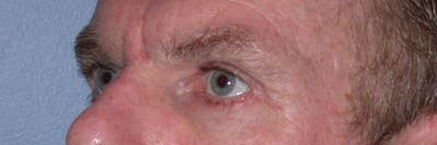 Male Eye Procedures Gallery - Patient 6097015 - Image 8