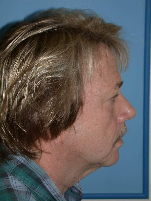 Male Neck Procedures Gallery - Patient 6097043 - Image 3