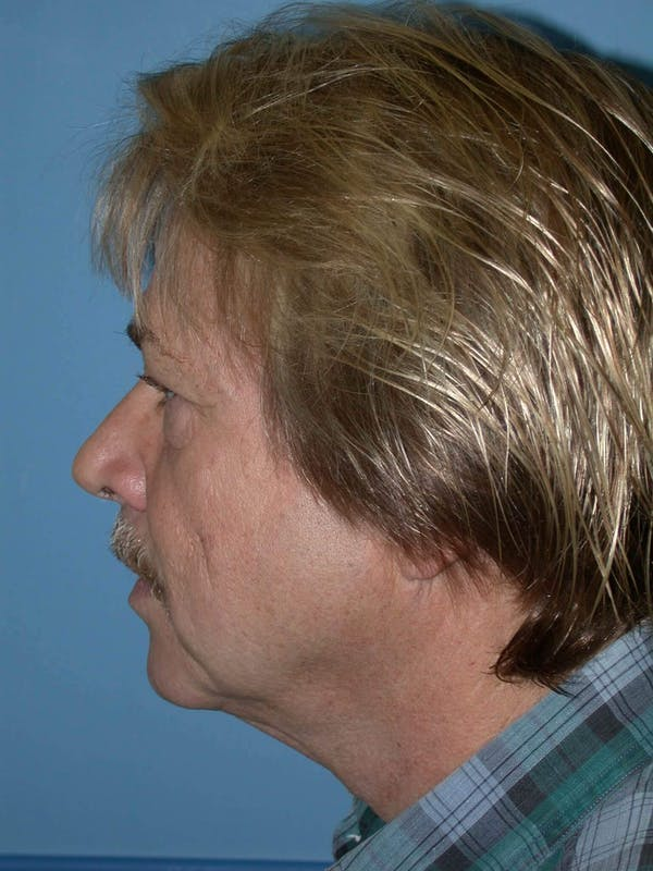 Male Neck Procedures Gallery - Patient 6097043 - Image 5