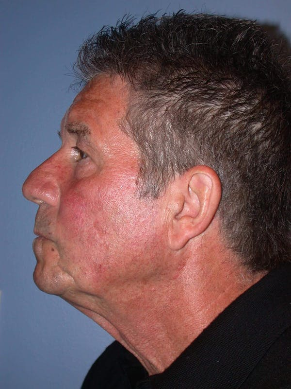 Male Neck Procedures Gallery - Patient 6097044 - Image 3