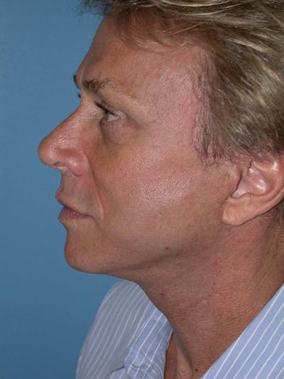 Male Neck Procedures Gallery - Patient 6097043 - Image 6