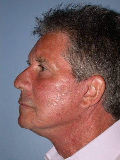 Male Neck Procedures Gallery - Patient 6097044 - Image 4