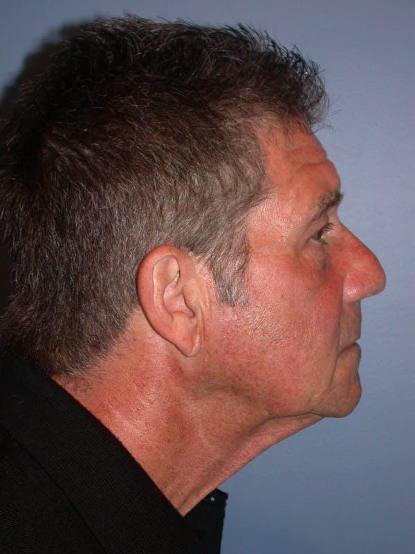 Male Neck Procedures Gallery - Patient 6097044 - Image 5