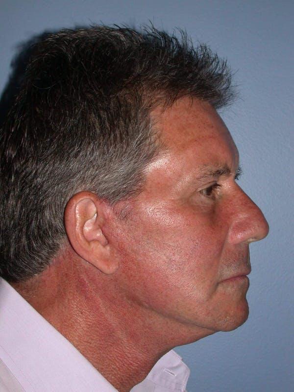 Male Neck Procedures Gallery - Patient 6097044 - Image 6