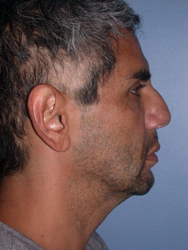 Male Neck Procedures Gallery - Patient 6097045 - Image 5