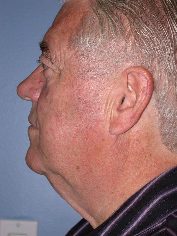 Male Neck Procedures Gallery - Patient 6097046 - Image 3