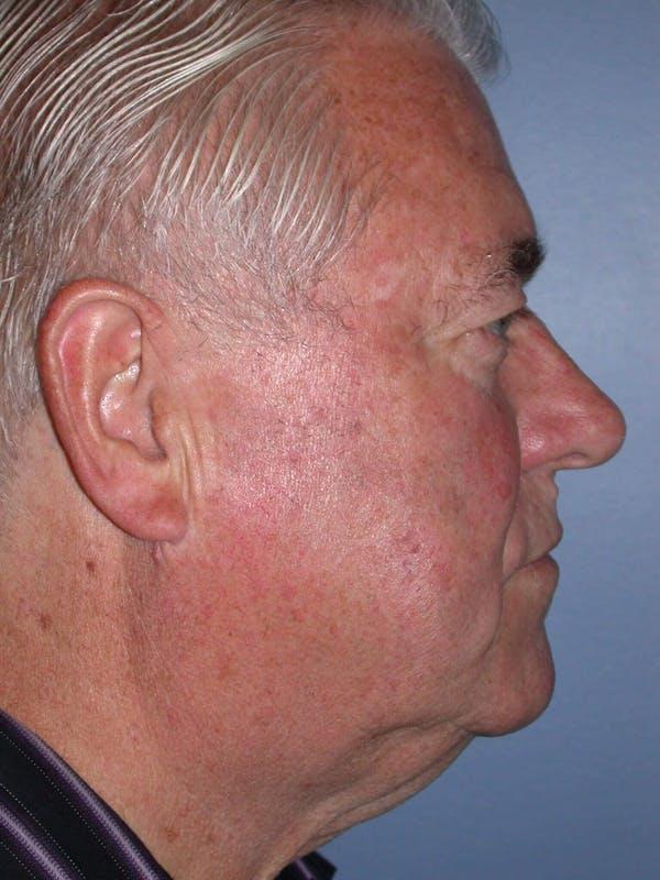 Male Neck Procedures Gallery - Patient 6097046 - Image 5