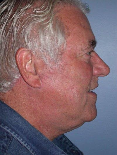Male Neck Procedures Gallery - Patient 6097046 - Image 6
