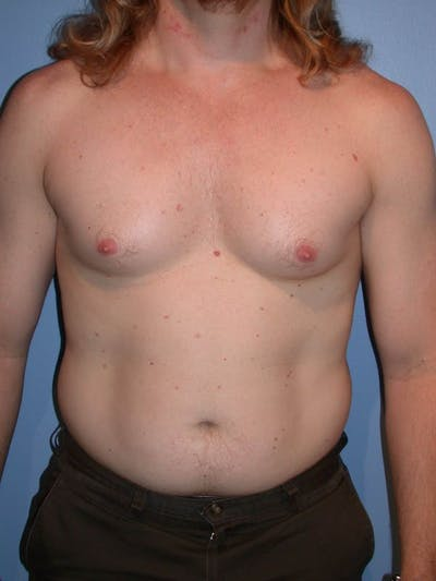 Male Liposuction Gallery - Patient 6097146 - Image 1