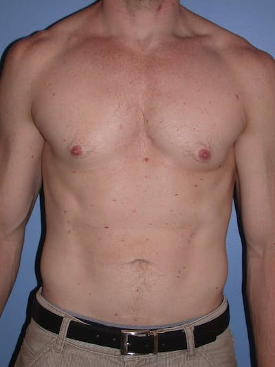 Male Liposuction Gallery - Patient 6097146 - Image 2