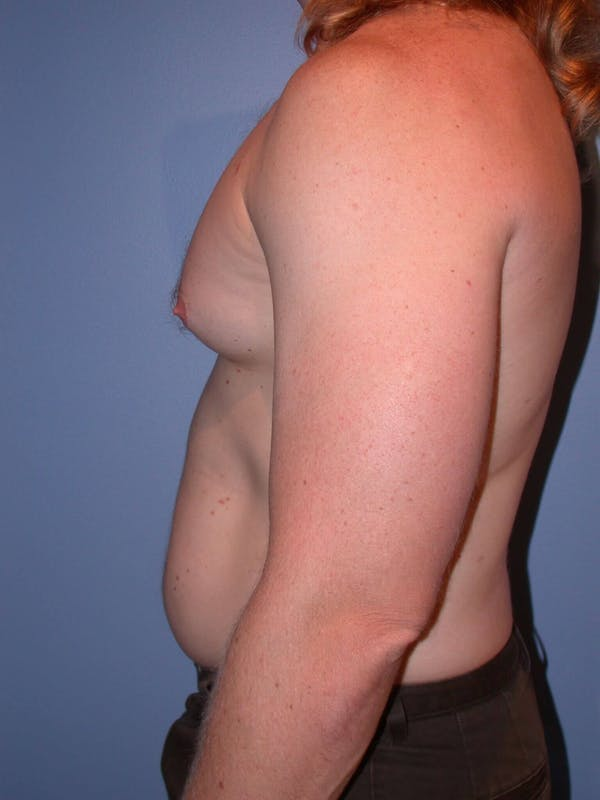 Male Liposuction Gallery - Patient 6097146 - Image 3