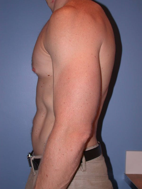 Male Liposuction Gallery - Patient 6097146 - Image 4