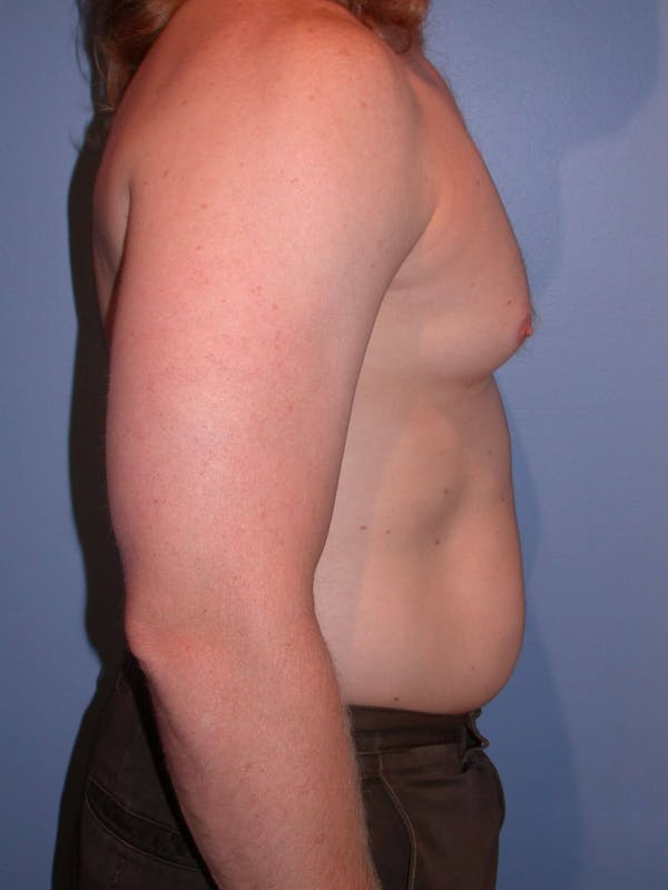 Male Liposuction Gallery - Patient 6097146 - Image 5