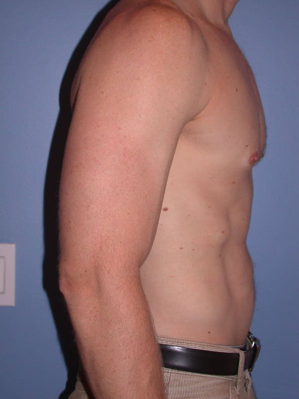 Male Liposuction Gallery - Patient 6097146 - Image 6