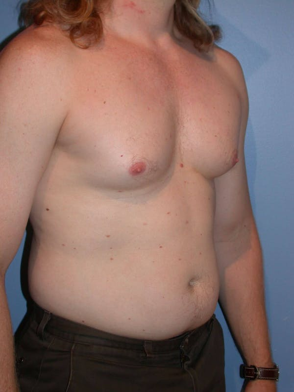 Male Liposuction Gallery - Patient 6097146 - Image 7