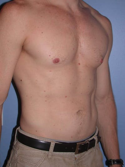 Male Liposuction Gallery - Patient 6097146 - Image 8