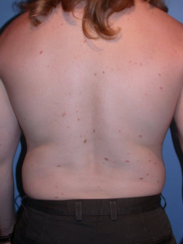 Male Liposuction Gallery - Patient 6097146 - Image 9