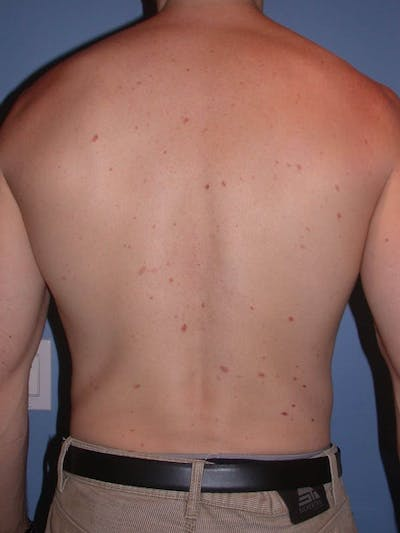 Male Liposuction Gallery - Patient 6097146 - Image 10