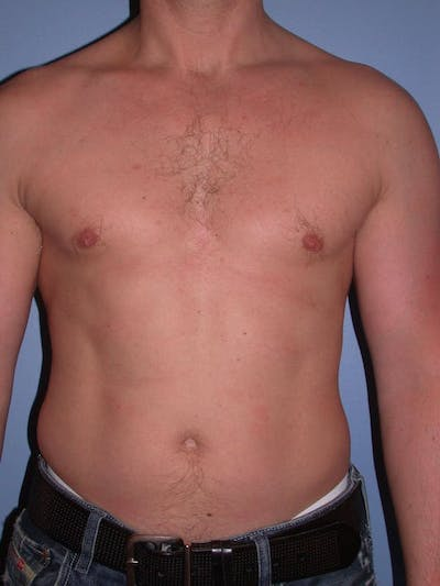 Male Liposuction Gallery - Patient 6097147 - Image 1