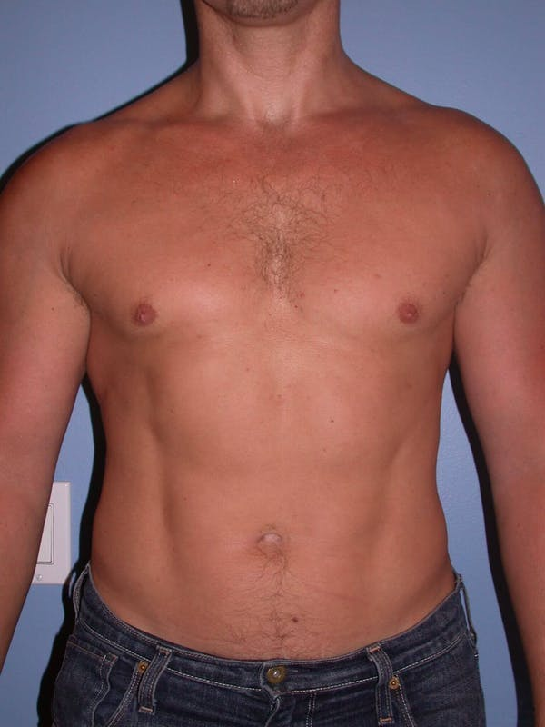 Male Liposuction Gallery - Patient 6097147 - Image 2