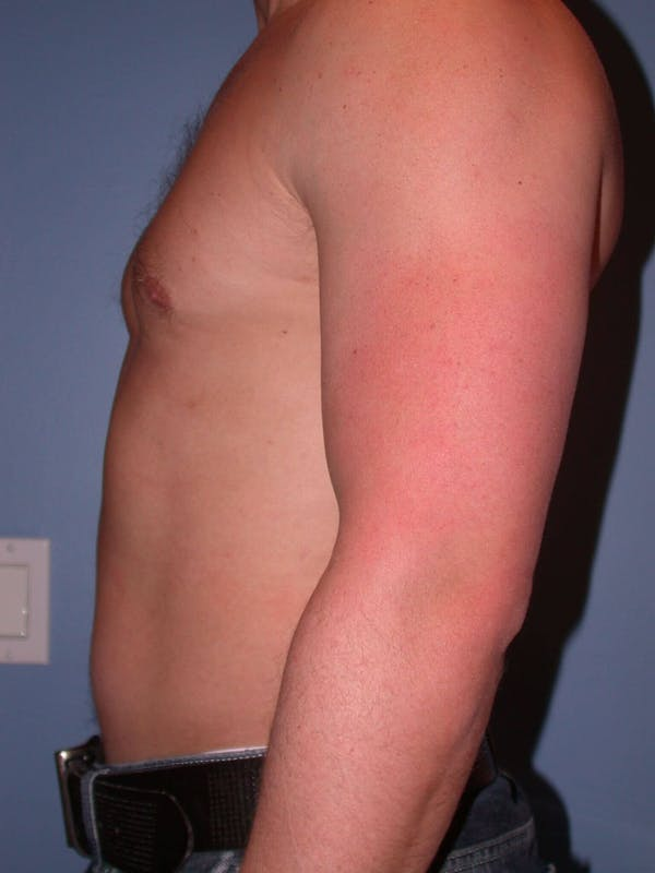 Male Liposuction Gallery - Patient 6097147 - Image 3