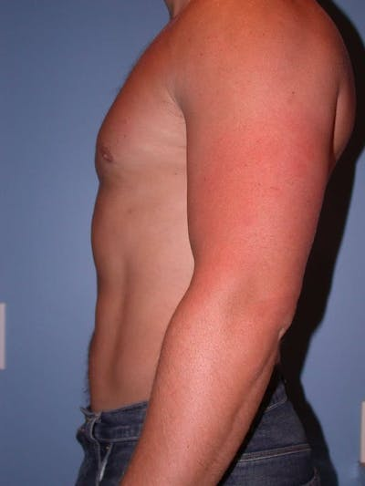 Male Liposuction Gallery - Patient 6097147 - Image 4