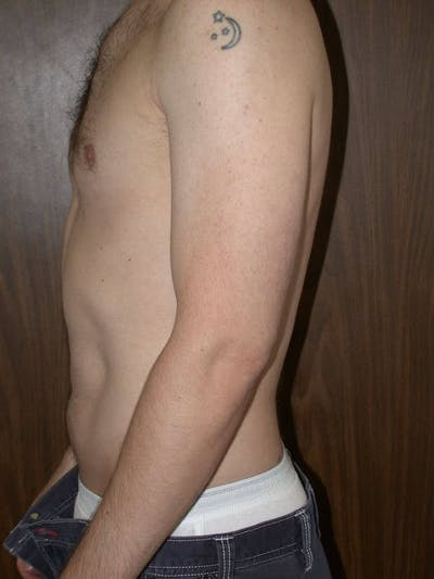 Male Liposuction Gallery - Patient 6097148 - Image 2