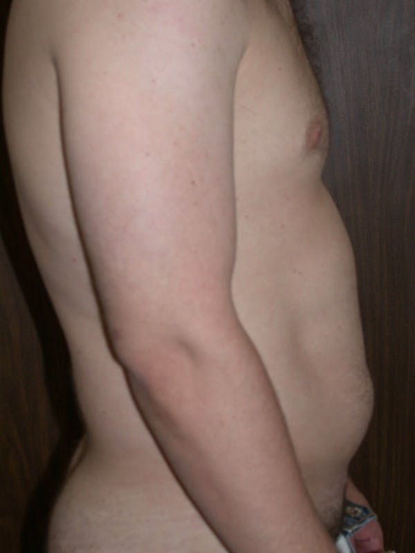 Male Liposuction Gallery - Patient 6097148 - Image 3