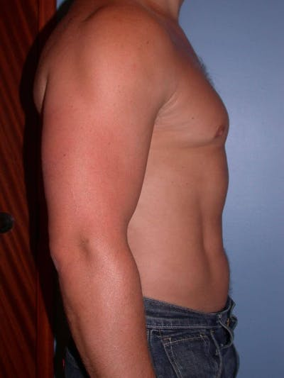 Male Liposuction Gallery - Patient 6097147 - Image 6