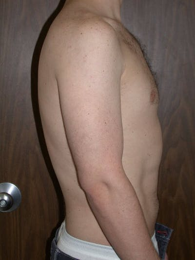 Male Liposuction Gallery - Patient 6097148 - Image 4