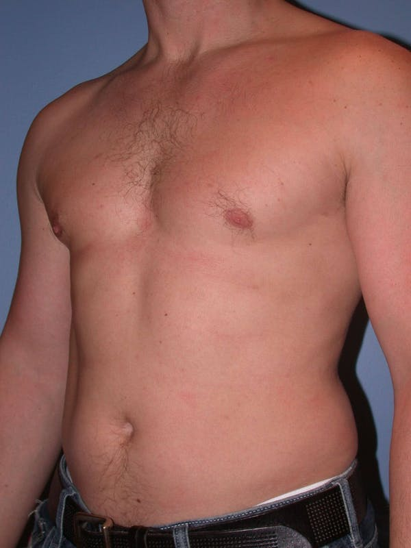 Male Liposuction Gallery - Patient 6097147 - Image 7
