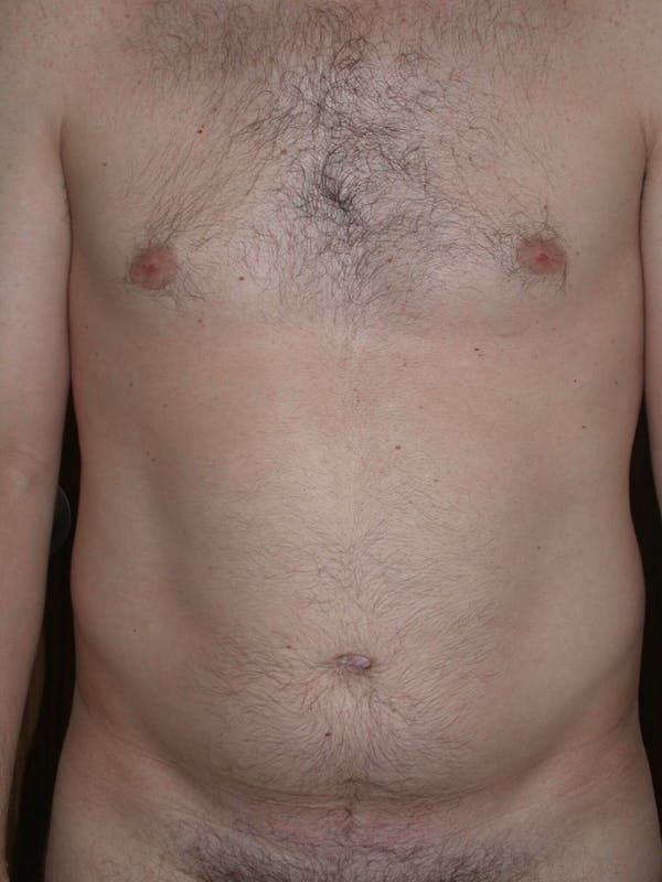 Male Liposuction Gallery - Patient 6097148 - Image 5